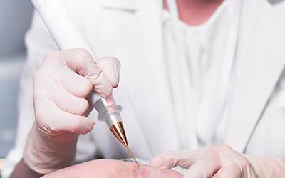 Dermatochirurgia - informacje