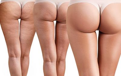 Etapy leczenia cellulitu