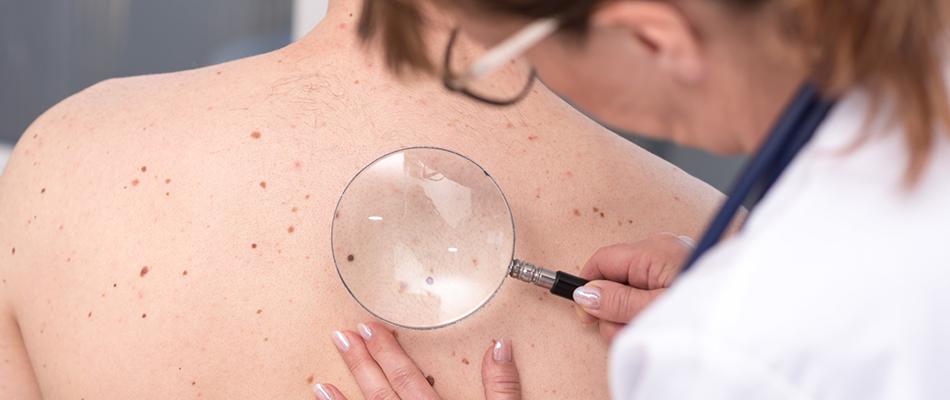 Leczenie nowotworów skóry