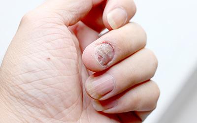 Łuszczyca - paznokcie