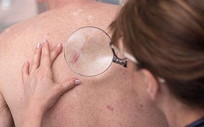 Nowotowy skóry