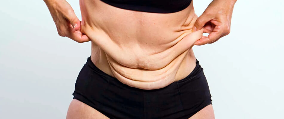 Cellulit na brzuchu