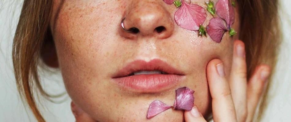 Domowe sposoby na trądzik różowaty