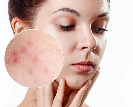 Objawy trądziku różowatego – jak je zwalczyć?