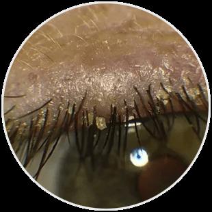 Nużyca - oko