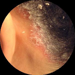 Łuszczyca głowy - odpadająca skóra