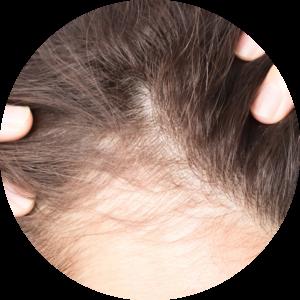 Preparaty na porost włosów zakola