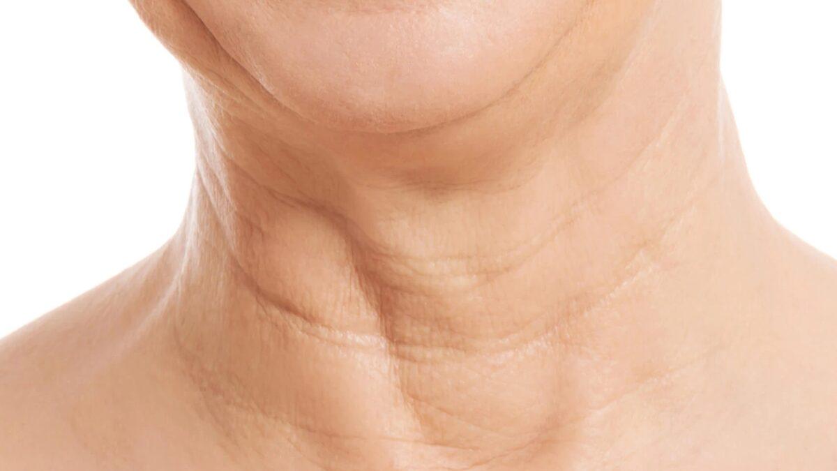 Zmarszczki na szyi - jak powstają