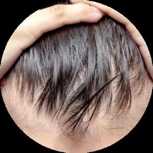 Wcierki na wypadanie włosów