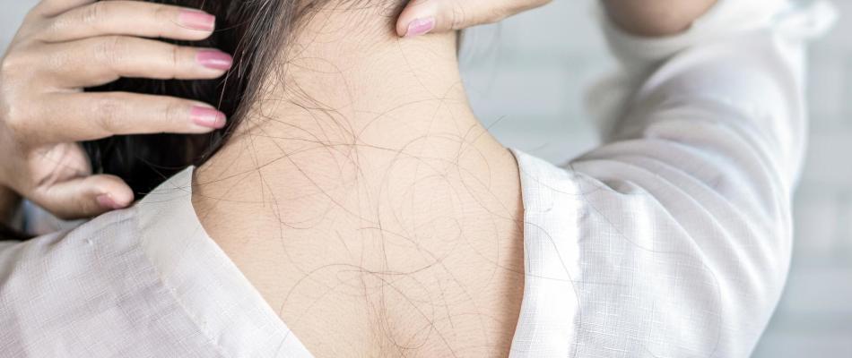Wypadanie włosów po ciąży - skąd się bierze i jak długo trwa